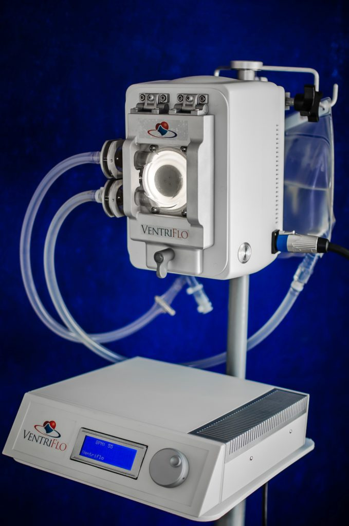 VentriFlo True Pulse Pump